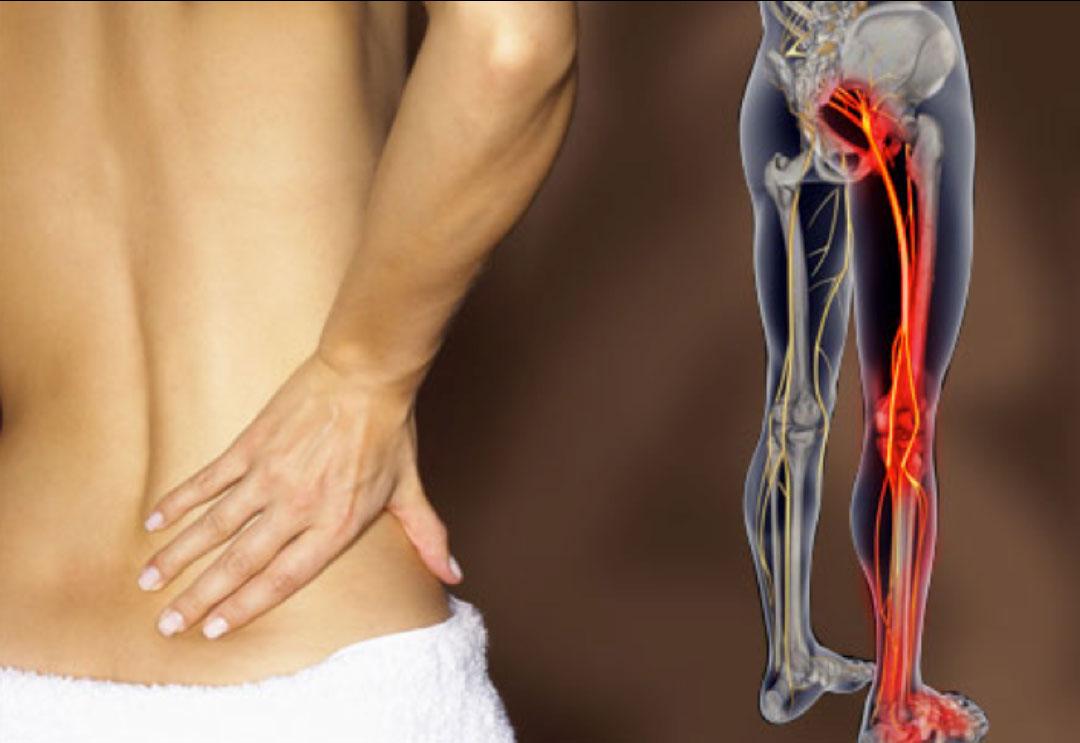 autotrattamento del mal di schiena